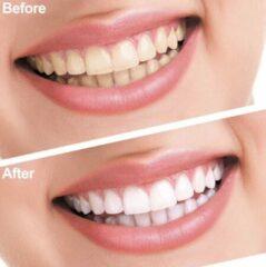 Blauwe AT-Shop.nl Tandbleekset Professional - Tandenbleekset - Witte tanden - Zonder peroxide - Zelf thuis je tanden bleken