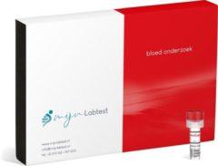 Mijnlabtest Ontstekingen bloed test (hs-CRP)